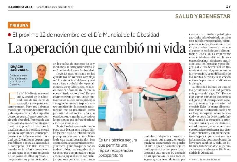 Diario de sevilla: Dr. Ignacio Cañizares y el tratamiento de la obesidad. Día mundial obesidad.